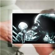X-Ray Vision 7