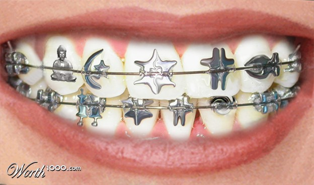 Cool Braces Colors Combinations | www.imgkid.com - The ...